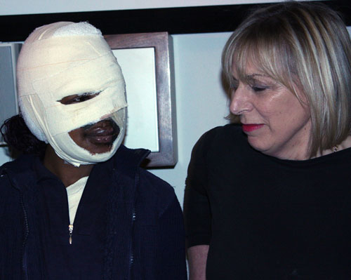 Acid victim forgives attackers