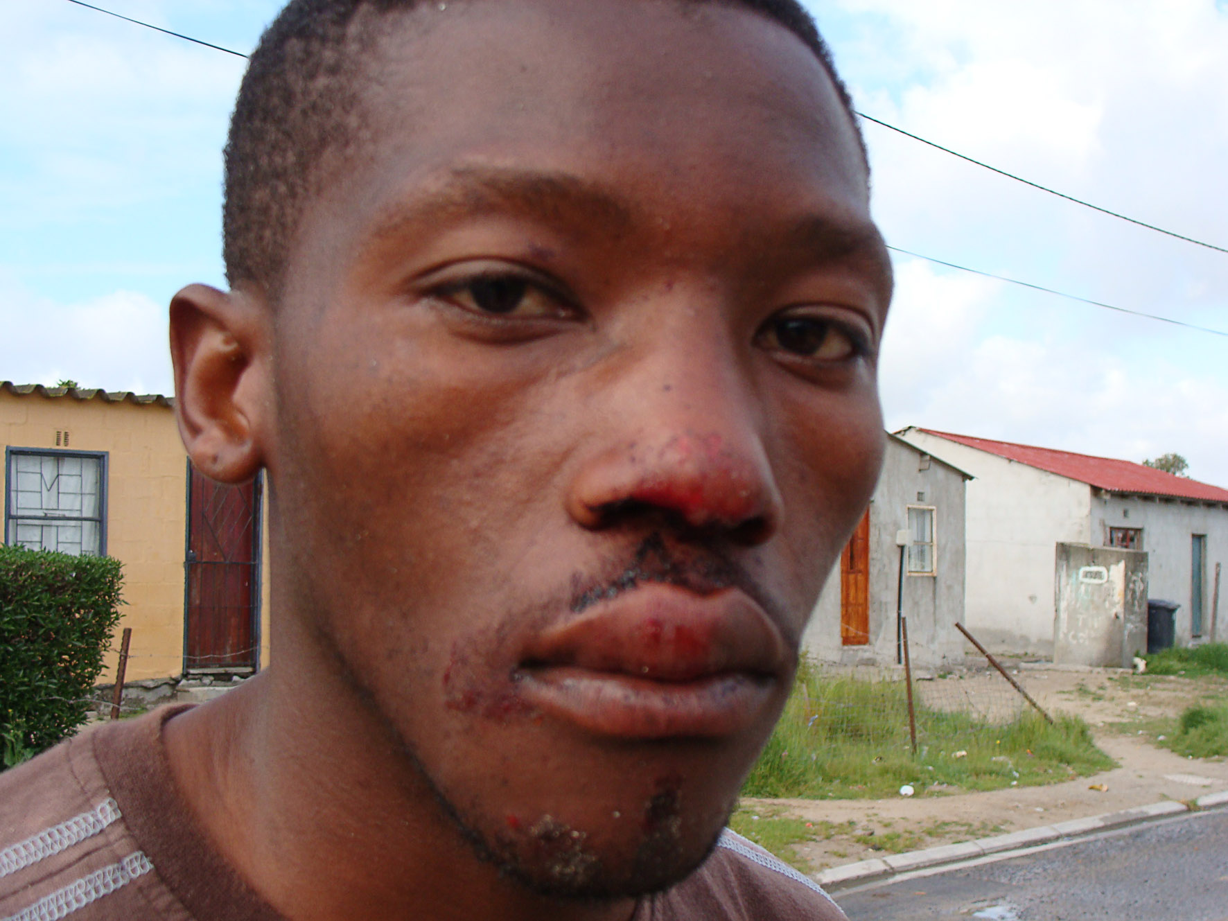 Philippi resident Lulamile Loliwe, 23, says he was one of 13 young men taken in for questioning and brutally beaten by police after a police reservist was gunned down on Sunday night. Photo: Sandiso Phaliso/WCN